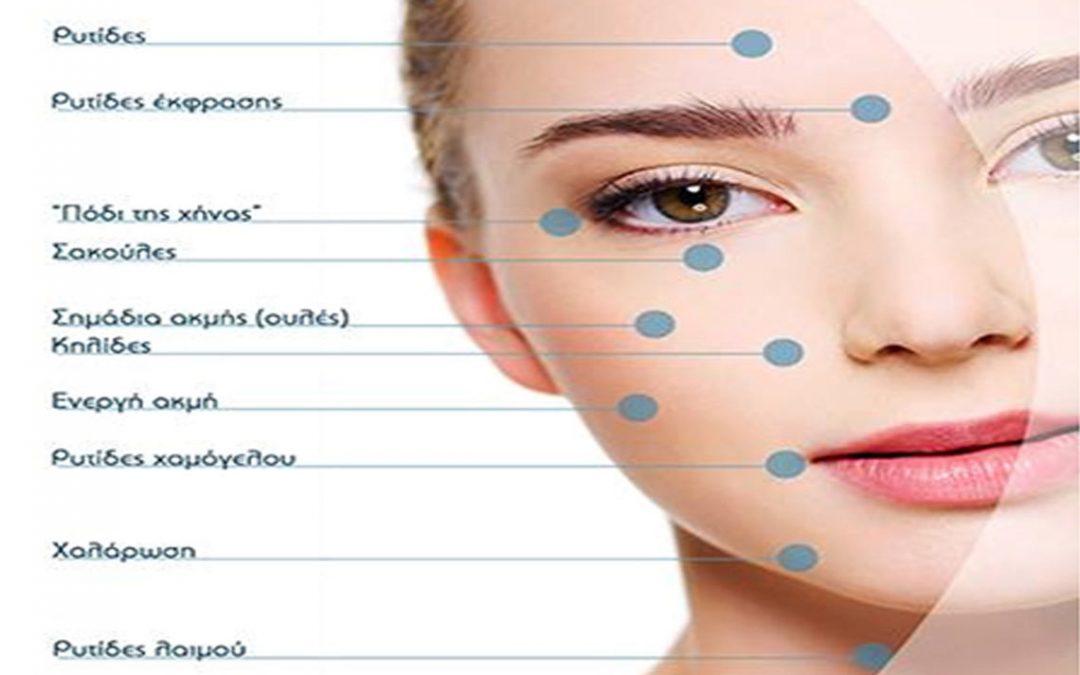 Η μεσοθεραπεία με μικροβελόνες (microneedling), γίνεται με την χρήση ενός ειδικού στυλού πάνω στον οποίο προσαρμόζεται μία κεφαλή με 9 μικροβελόνες