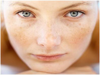 Η φωτοανάπλαση με laser IPL/E-LIGHT είναι η πιο επαναστατική μέθοδος για την βελτίωση των ατελειών του δέρματος και την μείωση των δυσχρωμιών.