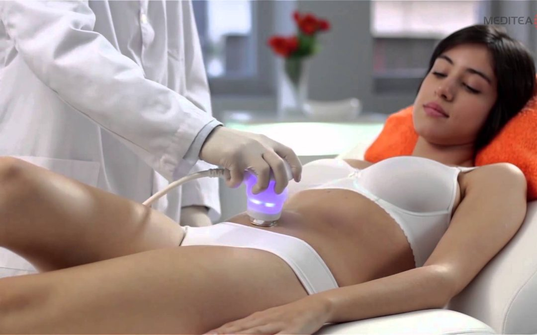 LipoStar Therapy